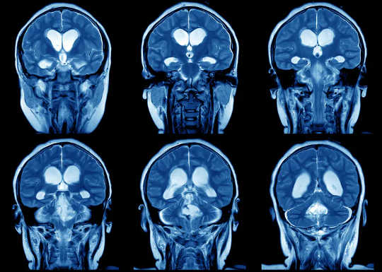 Что такое пластичность мозга и почему это так важно?