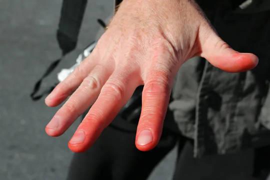 Radang dingin juga mengurangi aliran darah untuk membantu organ tetap hangat. (empat alasan Anda mungkin selalu merasa kedinginan)