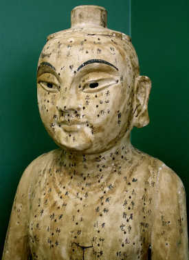 An ancient acupuncture statue.