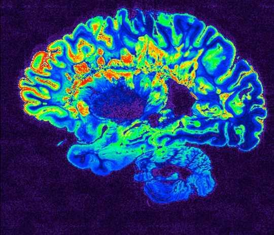冠状病毒如何影响大脑