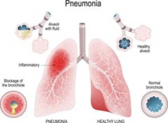 Apa Arti Kelangsungan Hidup Terkenal Dalam Pandemik Coronavirus?