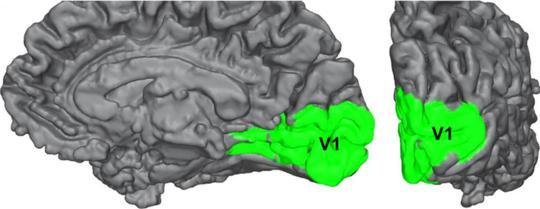 दृष्टिहीनता: एक अजीब न्यूरोलॉजिकल स्थिति जो हमें चेतना को समझाने में मदद कर सकती है