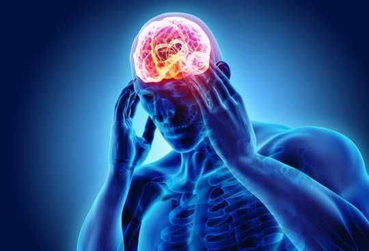 Why The Cluster Headache Is More Than Just A Headache
