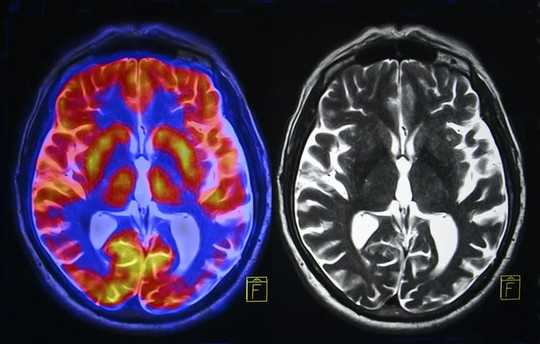 Hoe chroniese spanning die brein verander en wat u kan doen om die skade te keer