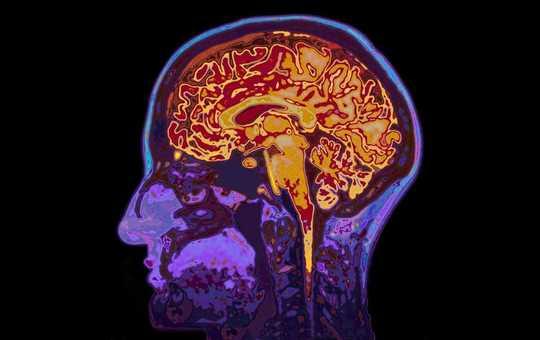 Fem fantastiske fakta om hjernen din