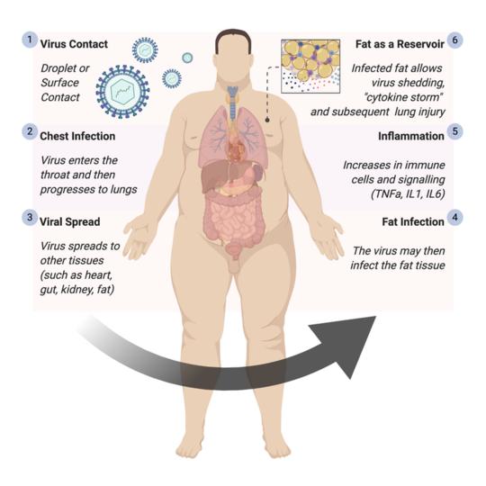 Naka-link ang Coronavirus Sa Higit na Panganib Ng Bantaong Nagbabanta sa Buhay Sa Mga Tao na May labis na Katabaan
