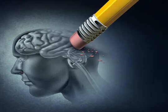 Imagen de un lápiz que borra una parte del cerebro de una persona.
