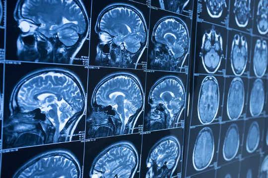 मानव मस्तिष्क की संरचना पुरुषों और महिलाओं में समान है।