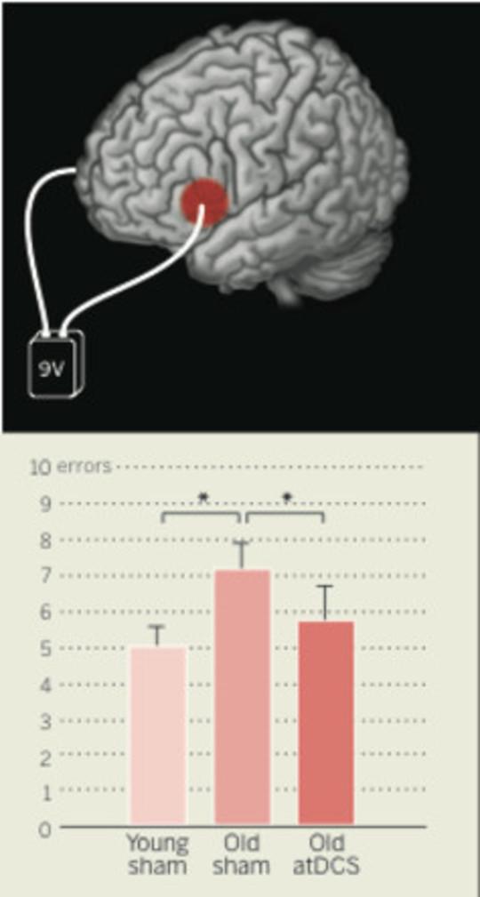 mri brain scan2
