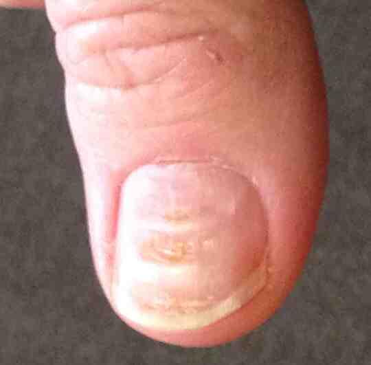 Um polegar com as linhas de Beau
