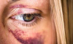 violência doméstica 2 25