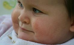 Çocuğunuzun Bebeğinin Yağının Yaşla Birlikte Erimesine İnanmayın