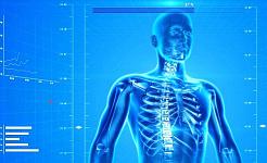 我们可以预防骨质疏松症吗?