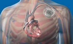 이 임플란트는 심장 마비가 일어날 때까지 한달 전에 그것을 예측합니다.