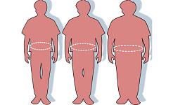 Тучные пациенты часто не получают диагностику ожирения