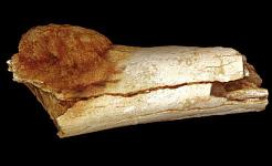 Ο όγκος της εικόνας της εξωτερικής μορφολογίας του οστού των ποδιών δείχνει την έκταση της επέκτασης του πρωτογενούς καρκίνου των οστών πέρα από την επιφάνεια του οστού. Patrick Randolph-Quinney (UCLAN)