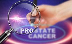 Этот инструмент предсказывает, что рак предстательной железы вернется после операции