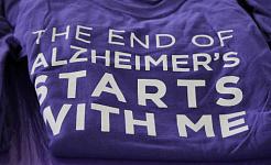 알츠하이머 병을 개발하면 자녀도 그럴 수 있습니까?